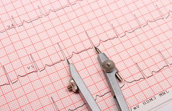 Electrocardiogram graph report and calipers Stock Images