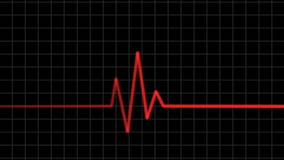 Electrocardiogram. Heartbeat waves