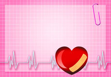 Electrocardiogram Royalty Free Stock Photography