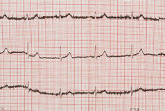 Electrocardiogram isolated Royalty Free Stock Photography