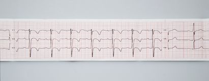 Electrocardiogram. The normal result of electrocardiography in a 3-year-old child. Medical research. Electrocardiogram. The normal result of electrocardiography royalty free stock images
