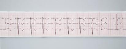 electrocardiogram O resultado normal da eletrocardiografia em uma criança dos anos de idade 3 imagens de stock royalty free