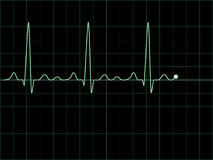 Electrocardiogram on an oscilloscope Royalty Free Stock Photos
