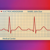 Electrocardiogram Paper with Normal ECG Royalty Free Stock Photo