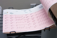 Electrocardiogram paper read-out 2 Royalty Free Stock Images