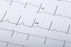 Electrocardiogram. Peoples heartbeat electrocardiogram paper background Royalty Free Stock Photo