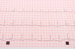 Electrocardiogram on the pink grid Stock Photo