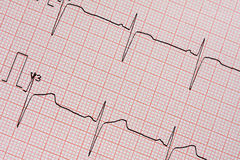 Electrocardiogram Printout. On squared paper royalty free stock photos