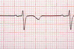 Electrocardiogram Printout Royalty Free Stock Photography