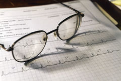 Electrocardiogram Readout and Glasses Stock Photography