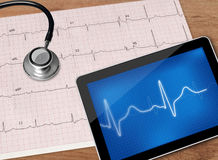 Electrocardiogram and stethoscope Royalty Free Stock Photos