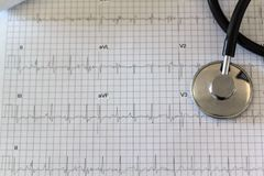 Electrocardiogram and stethoscope royalty free stock photo