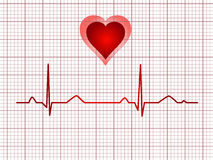 Electrocardiogram track Royalty Free Stock Image