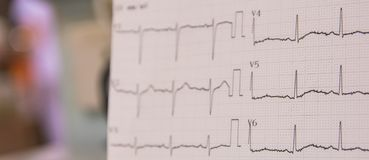 Electrocardiogram for detected abnormal heart rate in the patients who has clinical chest pain in the emergency room in hospital. Electrocardiogram used to Royalty Free Stock Image