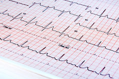 Electrocardiogram on white background Stock Photo