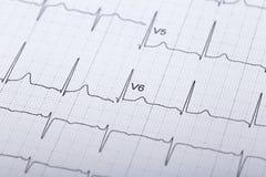 electrocardiograma Foto de archivo libre de regalías