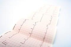 Electrocardiograma fotos de archivo libres de regalías