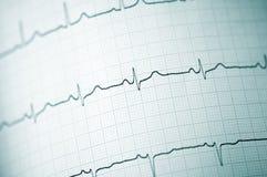 Electrocardiograma Imagens de Stock Royalty Free