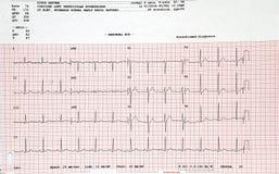 Electrocardiograma imagen de archivo libre de regalías