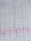 Electrocardiograma foto de stock