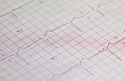 Electrocardiograma Fotos de Stock