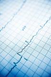 electrocardiograma fotografía de archivo