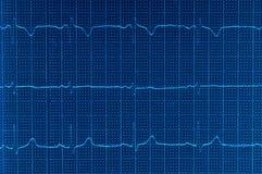 Electrocardiograma de ECG Fotos de archivo