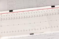 Electrocardiograma ECG/ECG con arritmia cardiaca imágenes de archivo libres de regalías