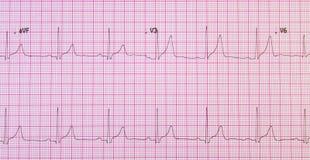 Electrocardiograma en rejilla rosada Fotos de archivo libres de regalías