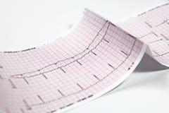 Electrocardiograma, prueba del corazón EKG Imagen de archivo libre de regalías