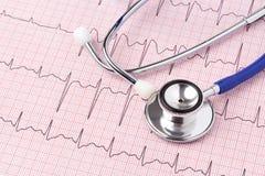 Electrocardiograma y estetoscopio imagen de archivo