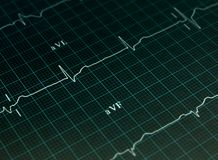 Electrocardiogramgraf Arkivfoto