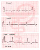 The electrocardiograms with medical sign. The medical electrocardiogram of palpitation medical sign Stock Image