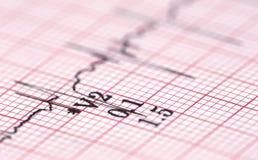 electrocardiograph Photo libre de droits