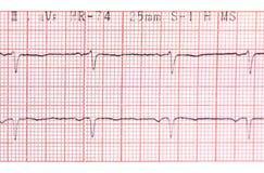 electrocardiograph Image libre de droits