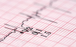 Electrocardiograph Royalty Free Stock Photo