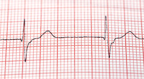 Electrocardiograph Royalty Free Stock Image