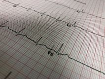 ECG. Electrocardiograph diagnostic test on graph paper measuring electrical rhythm of the heart stock photos