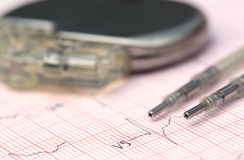 Electrocardiograph with pacemaker Royalty Free Stock Photos