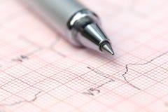 Electrocardiograph with pen Stock Photos