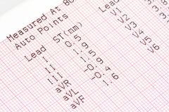 Electrocardiography Chart Royalty Free Stock Photography