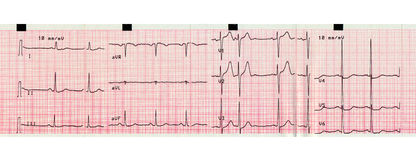 Electrocardiography of heart beat Stock Photos