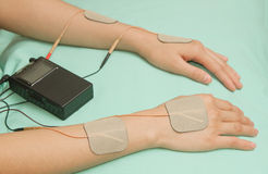 Electrodes device on shoulder, transcutaneous interferential el. Electrodes device on wrist and hand, transcutaneous interferential electrical stimulation( TENS stock images