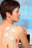 Electrodes of tens device. On the womans back, tens therapy, nerve stimulation Stock Photo