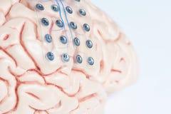 Electrodo subdural de la rejilla para las ondas cerebrales que registran en el modelo del cerebro fotos de archivo libres de regalías