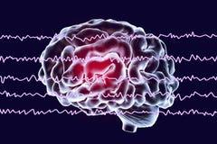 Electroencefalograma de EEG, onda cerebral en estado despierto con actividad mental ilustración del vector