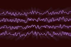 Electroencefalograma de EEG, onda cerebral en estado despierto durante resto ilustración del vector