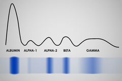 Electrophoresis för blodserumprotein Arkivbild