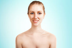 Elegant blond woman portrait with surgery marks on blue Royalty Free Stock Image