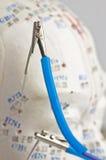 Elektrisch-Akupunktur stockfotografie